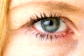 Stye, Hordeolum, bacterial infection of womans eye, medical, pharmaceutical, eye concepts